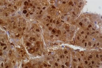 Arginase-1 (SP156) product photo Front View L