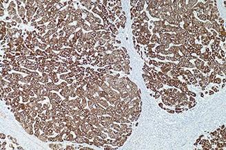Hepatocyte Specific Antigen (Hep-Par1) (OCH1E5) product photo Front View S